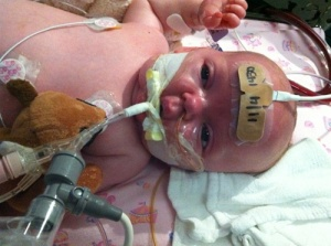 pertussis-baby-three-lg